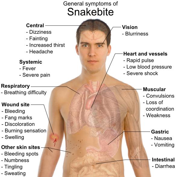 snake bote symptoms